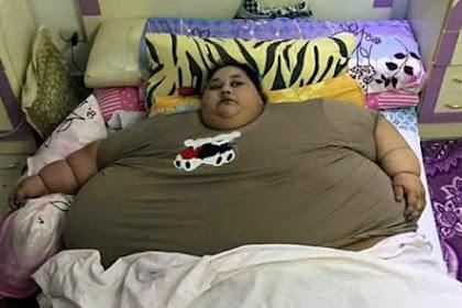 Wanita Paling Gemuk di Dunia dengan Berat 500 Kilogram