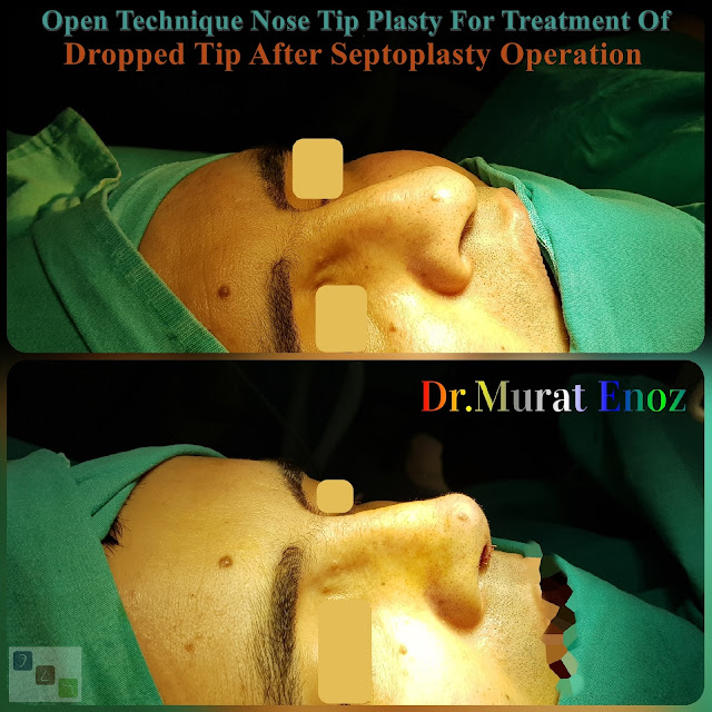 Open Technique Nose Tip Plasty For Treatment Of  Dropped Tip After Septoplasty Operation