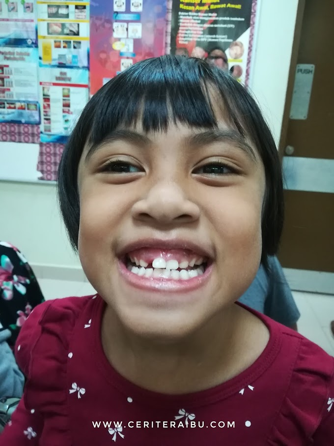 Kakak Diyana Cabut Gigi Pulak