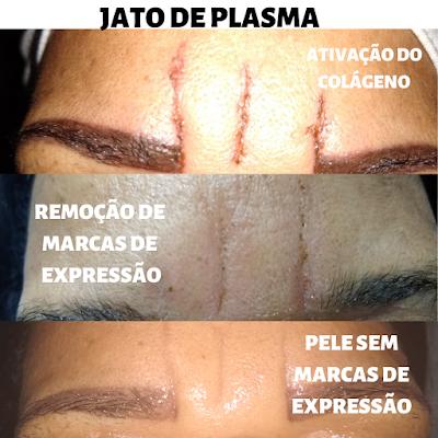 tratamento com jato de plasma em itapema