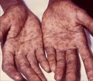 Obat Apakah Yang Tepat Untuk Penyakit Sipilis Pada Pria