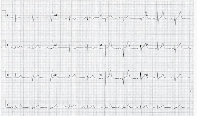 La hipertrofia septal basal o septum sigmoideo   ECHOVAR: ECO DEL DIA