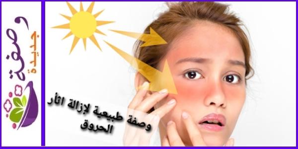 وصفة طبيعية لإزالة اثار الحروق من الوجه