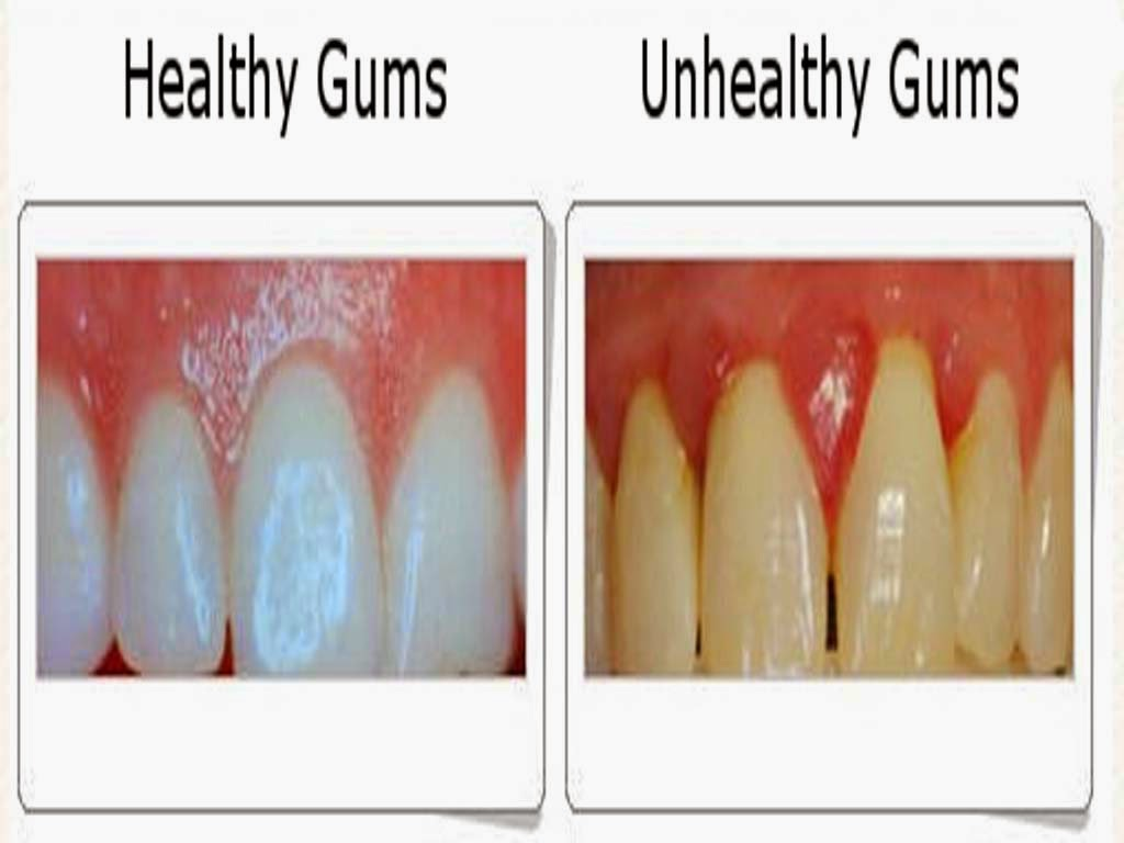 Health Tips 2016: Gum Health Tips Health Tips In Urdu For ...
