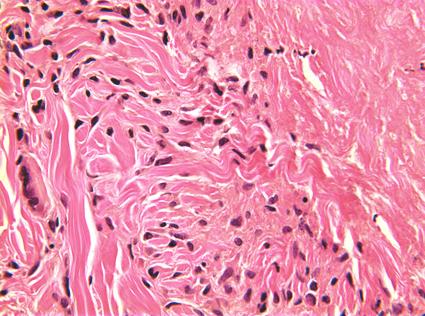 Granuloma elastolítico emedicina hipertensión