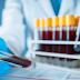 Se registran otras 7 muertes por coronavirus y 279 casos nuevos en el país