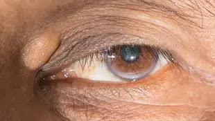 ترسبات الكولسترول حول العين.. هذا ما يجب أن تعرفيه أي زانثلازما في العين