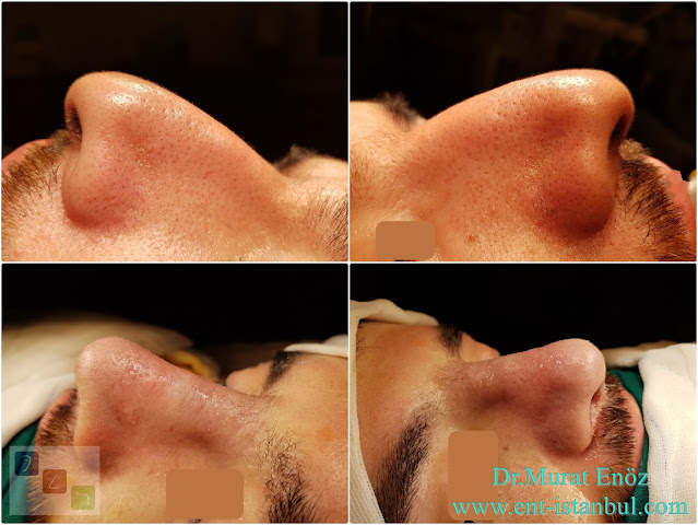 Rhinoplasty in Men Istanbul, Nose Job For Male. Men's Aesthetic Nose Surgery