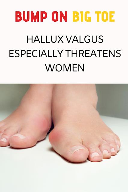 Bump on Big Toe: Hallux Valgus Especially Threatens Women