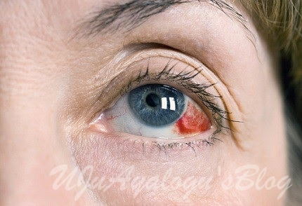 Causes, Symptoms of Broken Blood Vessel in the Eye and Treatment