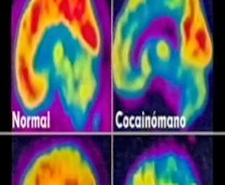 Los efectos a corto plazo del consumo de cocaína