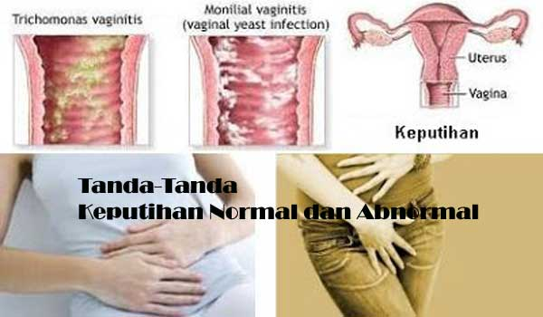 Tanda-Tanda Keputihan Normal dan Abnormal