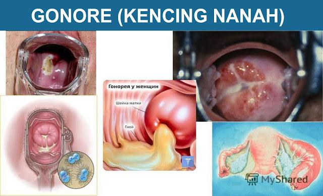 Gonore Kencing Nanah