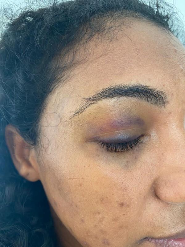 Passageira denuncia agressão feita por motorista de aplicativo em Feira de Santana: 'Me deu um murro no olho'