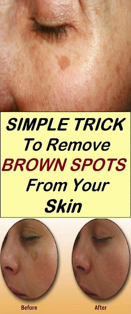 Find Out Who is Worried About Remove Brown Spots and Why You Should Pay Attention