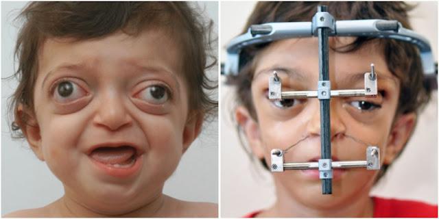 Врачам удалось исправить лицо мальчика с синдромом Крузона!