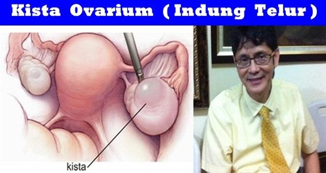 KISTA INDUNG TELUR kista ovarium Tanya Jawab Sex dr.Boyke