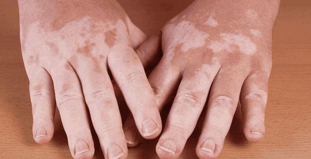 كيف يتم علاج مرض البهاق