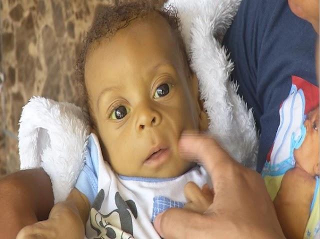 Padres piden ayuda bebé 4 meses trasplante de hígado