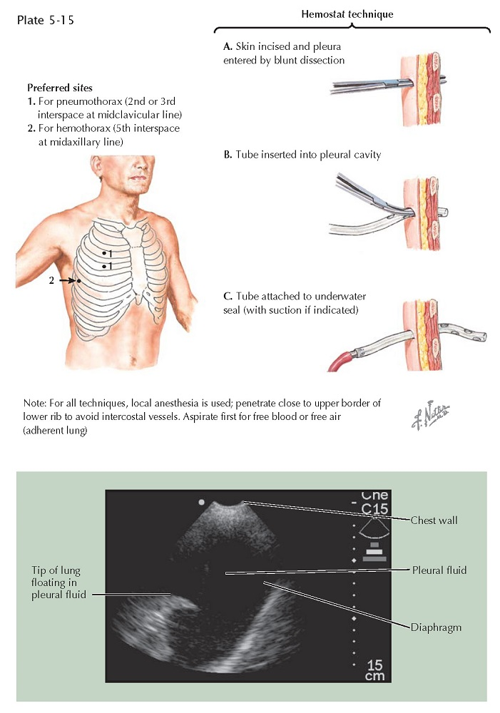 INTRODUCTION OF CHEST DRAINAGE TUBES