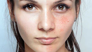 How to Remove Dark Spots with Baking Soda Naturally