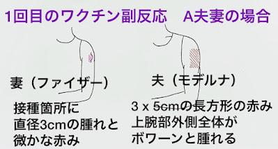 コロナワクチン副反応、ファイザーとモデルナ
