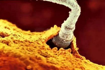 Jika Kamu Ingin Cepat Hamil, Maka Perhatikanlah Kualitas sel Telur Anda!