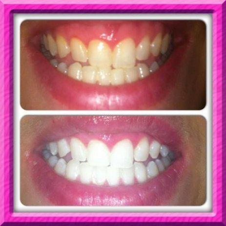 Цолгате избјељујућа паста за зубе