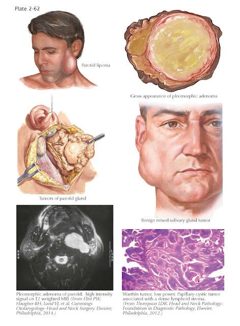 Benign Tumors of Salivary Glands