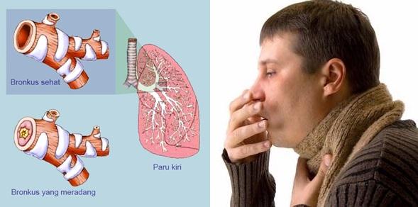 Apakah Penyakit Bronkitis Menular