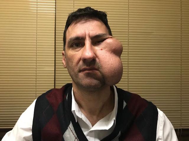 Ο συμπολίτης Θανάσης Συρόπουλος αντιμετωπίζει σοβαρό πρόβλημα υγείας, ζητά τη βοήθεια μας