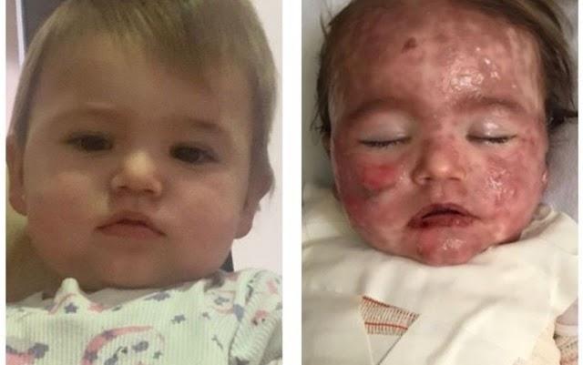 Bebê é intubada em UTI após ter 72% do corpo coberto por queimaduras causadas por reação a remédio, diz pai