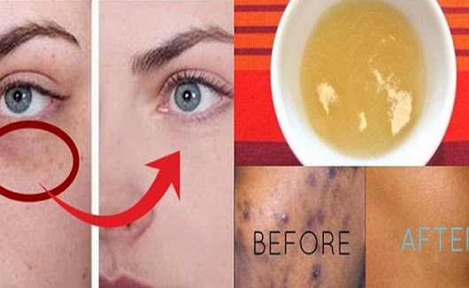 Get Rid of Black Spots on Your Face in Just 15 Minutes (VIDEO)