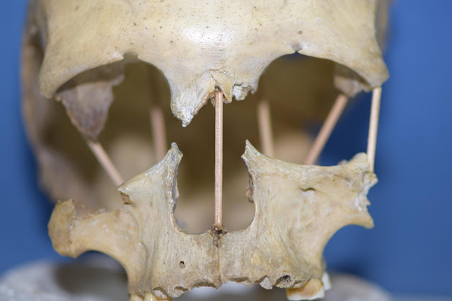 The entire genome of 35,000 year-old skull from southern Romania sequenced