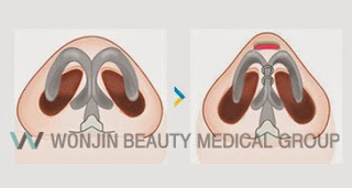 wonjin best korean rhinoplasty clinic