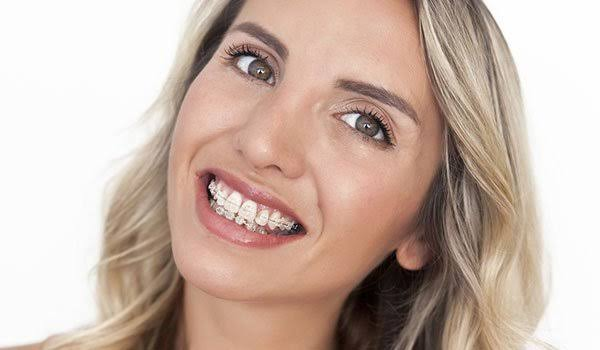 Orthodontic Treatment For Adult Braces