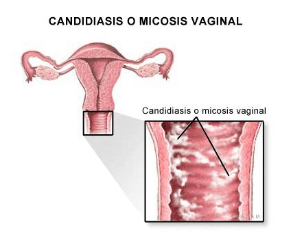 fotos de infección vaginal por levaduras