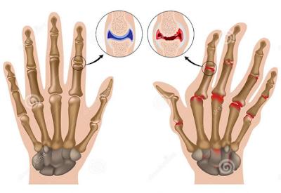 http://www.pusatmedik.org/2016/06/definisi-gejala-penyebab-dan-pengobatan-artritis-atau-arthritis-dalam-ilmu-kedokteran.html