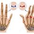 Definisi Gejala Penyebab dan Pengobatan Artritis atau Arthritis Dalam Ilmu Kedokteran
