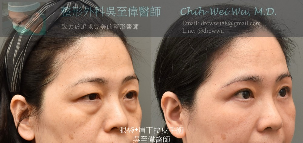 眉下拉皮合併眼袋手術:眉下拉皮〔眉下切皮〕權威吳至偉醫師