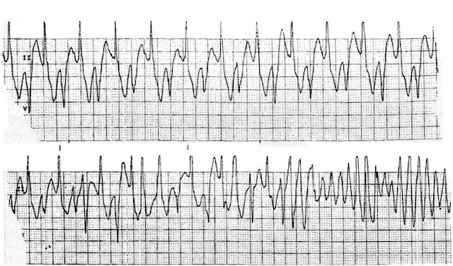 Catecholaminergic polymorphic ventricular tachycardia, CPVT