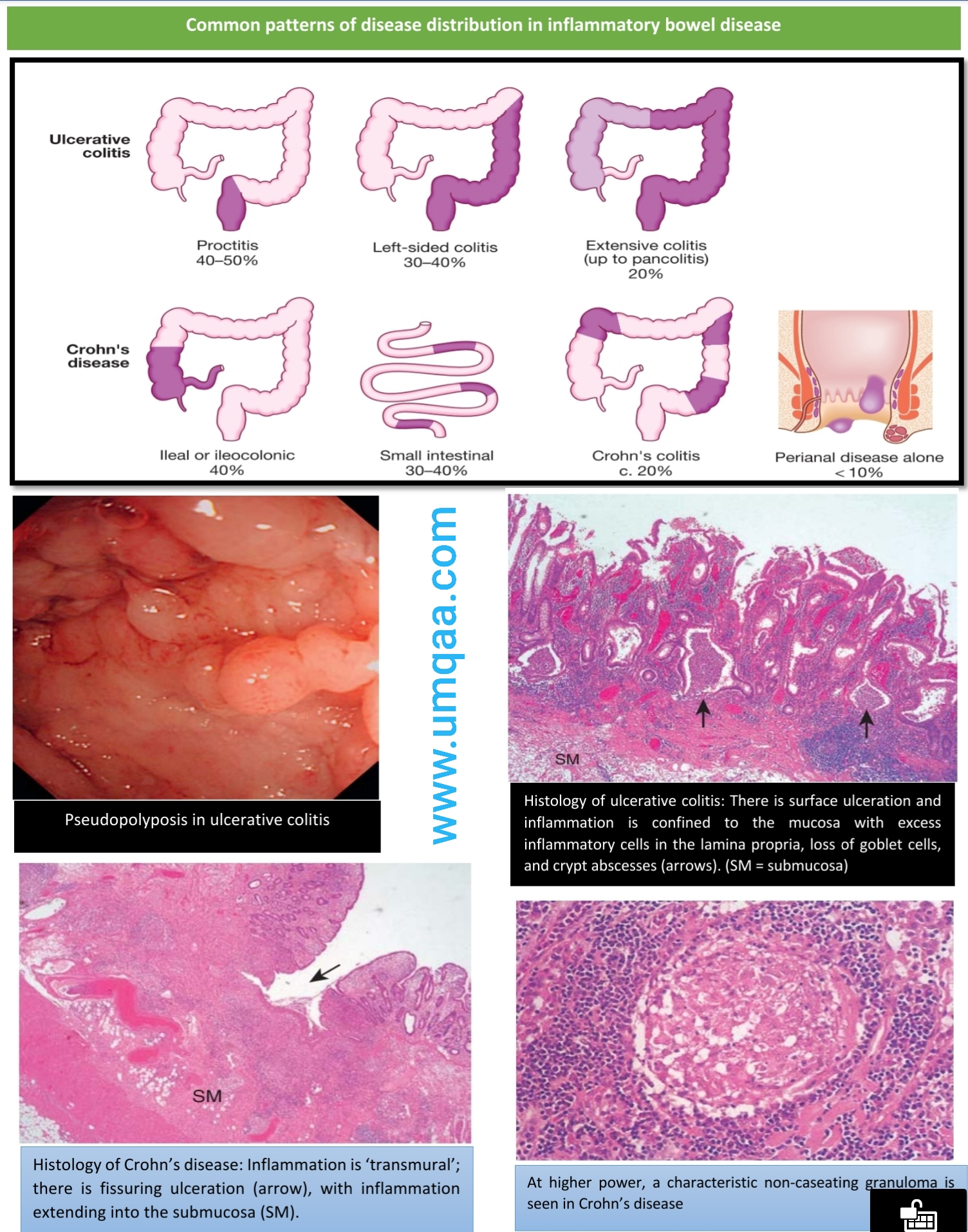 Crohn's disease (CD) and Ulcerative colitis (UC)