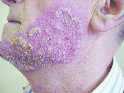 Tinea Barbae Penyakit Kulit Karena Infeksi Jamur Hotcopas
