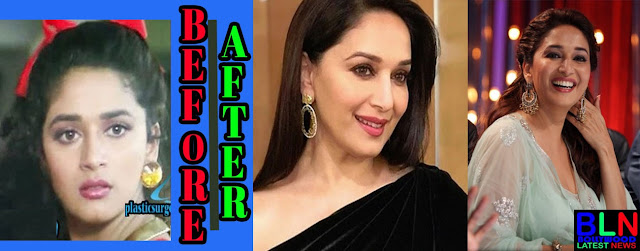 MADHURI DIXIT Bollywood Actresses Before and After Plastic Surgery