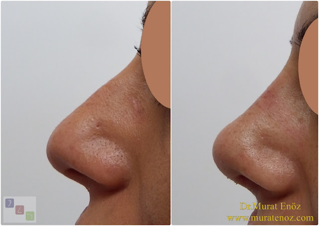 Nasal root filling with subcutaneous tissue - Nasal root filling with underskin tissue - Nose tip plasty - Limited nasal hump removal - Limited nasal hump reduction - Rhinoplasty without breaking the bone - Nose tip plasty in women Istanbul - Nose tip surgery in Istanbul - Nose tip plasty in Turkey