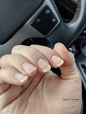 Dry cuticles with split nails
