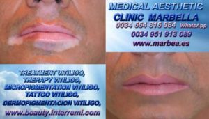 TRATAMIENTO PARA LAS MANCHAS DE VITILIGO clínica estética maquillaje semipermanente propone Vitiligo Tratamiento