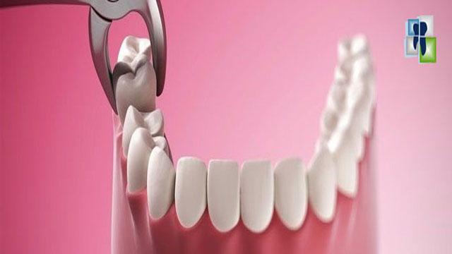 مبادئ قلع الأسنان واستعمال الكلابات والروافع