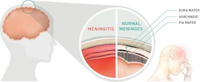 Inilah Proses Mengidap Penyakit Meningitis