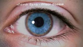 wilsons-disease